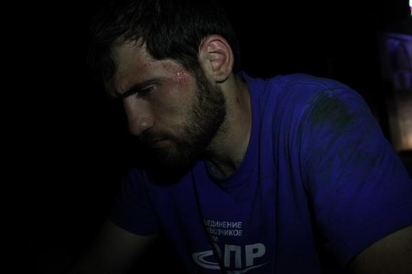 Избитый активист Рустам Малламагомедов. Фото: Анна Артемьева / «Новая газета»
