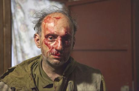 Юрист «Гринпис» Михаил Крейндлин после нападения